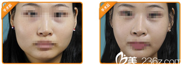 韩国丽儿整形下颌角手术案例