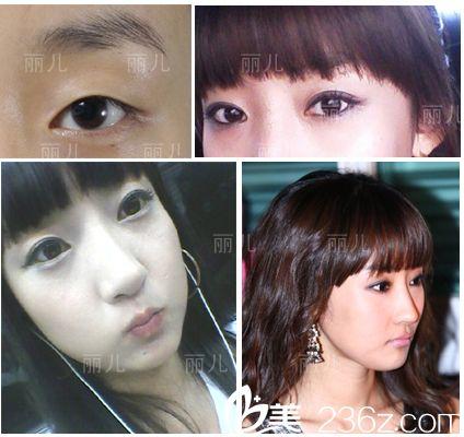 美女变形记:分享下我在韩国丽儿整形医院找黄敬夏做双眼皮+隆鼻+颧骨内推后的变化过程