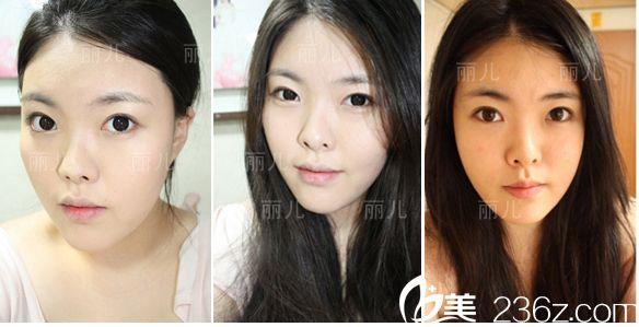 韩国丽儿整形医院做双眼皮怎么样?分享下金寿信做埋线双眼皮手术真人案例