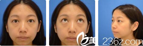 西安高一生医疗美容医院张林宏术前照片1