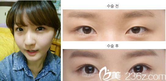 等了一个月终于预约上了金寿信,随后在韩国丽儿整形医院做了双眼皮+颧骨内推+下颌角手术后我重新拾起了自信