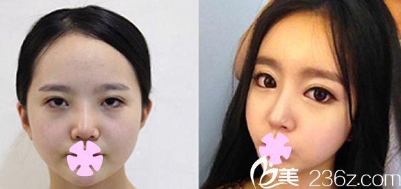 本沐整形医院,双眼皮和面部填充术后效果