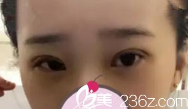 刚刚割完双眼皮之后的样子_看完我的全切双眼皮恢复过程案例 大家就知道蚌埠一院天宇虹双 ...