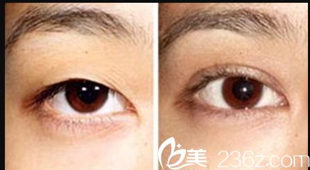无锡曼陀罗双眼皮整形术前术后对比