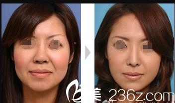 无锡曼陀罗隆鼻整形术前术后对比