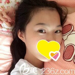 看我在大连丽宫女王医疗美容做的韩式微创双眼皮恢复效果图 不到一个月就恢复这么好了!