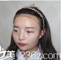 韩国毛杰琳整形医院医院植发际
