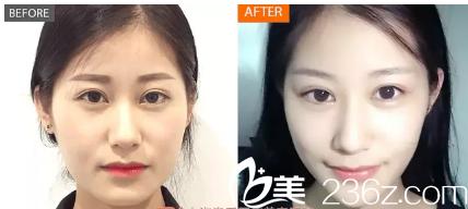 西安高一生医疗美容医院高秀梅术后照片1