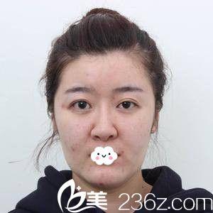 天津知妍医疗美容门诊部许鹏术前照片1