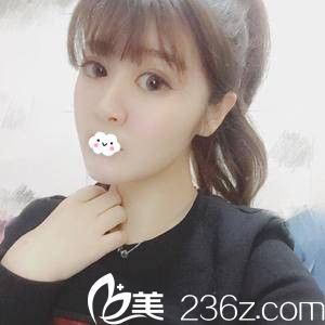天津知妍医疗美容门诊部许鹏术后照片1
