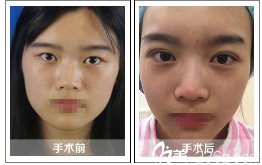 张家港唯恩整形美容医院双眼皮+瘦脸针案例