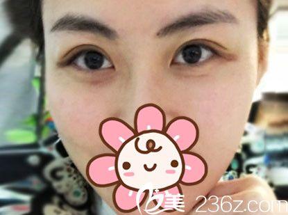 趁优惠在张家港唯恩做了埋线法双眼皮术后七天就基本恢复 闺蜜看了也准备割双眼皮