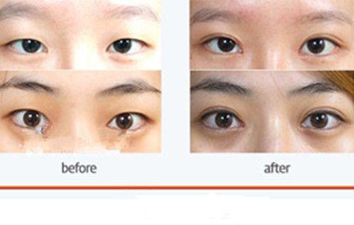 韩国朱丽叶整形医院双眼皮手术案例