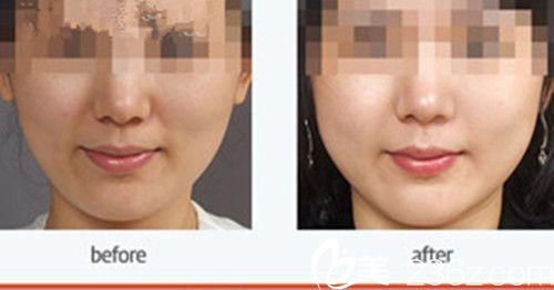 韩国朱丽叶整形医院面颊、贵族填充针案例