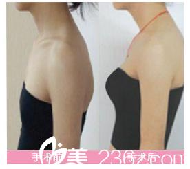 张家港康丽整形医院胸部整形对比案例