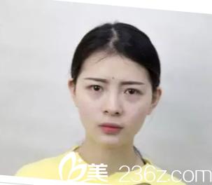 西安高一生医疗美容医院刘军术前照片1