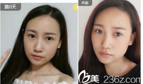 范荣辉医生眼部案例