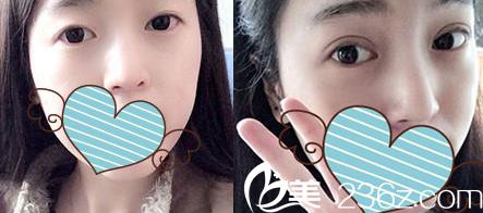 太原时光整形双眼皮失败修复案例效果图