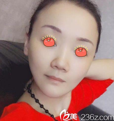 40岁的我选择花2万多找杭州格莱美金凤茹做面部线雕提升+玻尿酸填充来对抗衰老