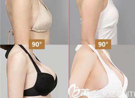 广州曙光整形医院刘杰伟胸部整形案例图