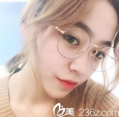 不想被叫眯眯眼的我去广州南方医院整形美容科找冯传波做了全切双眼皮