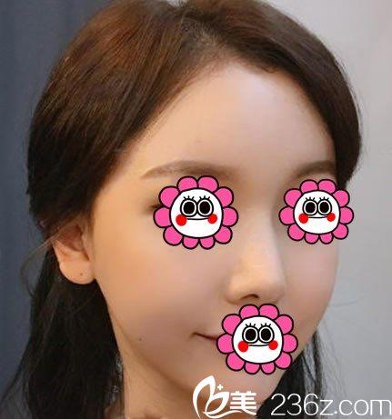 韩国YNT整形医院鼻部综合整形手术前  鼻部综合整形手术填充后对比图