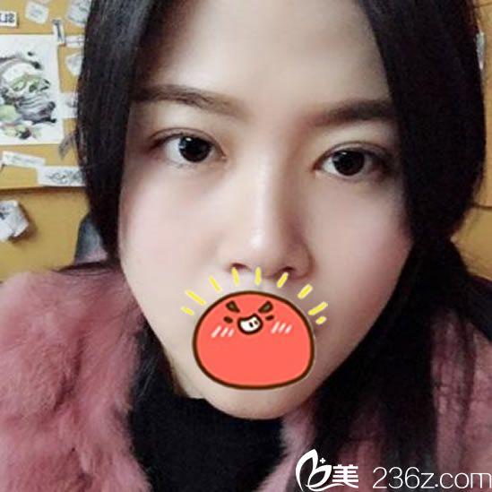 找台州博雅美惠做双眼皮和开眼角1个月了,看看这效果好吗?
