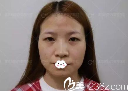 阜阳东方美莱坞医疗美容医院高士乾术前照片1