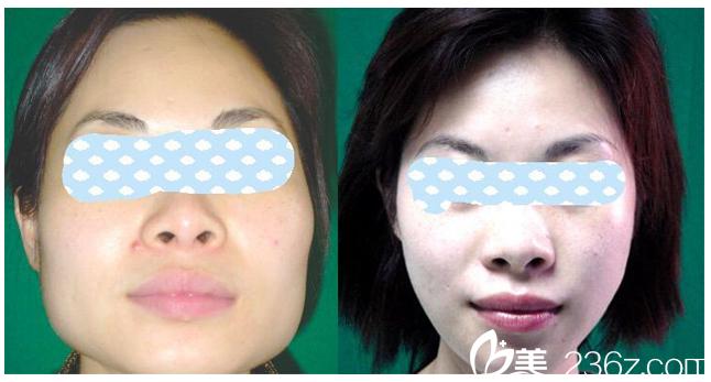 广州南方医院整形美容外科杜本军下颌角磨骨案例