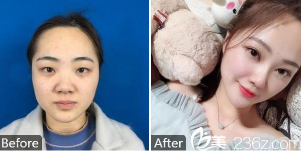 广州南方医院整形美容外科冯传波双眼皮隆鼻和自体脂肪填充案例
