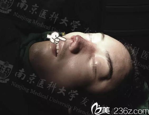 多次隆鼻导致严重的鼻软骨挛缩用肋软骨修复失败终于在南京医科大学友谊整形吴国平院长手下成功修复