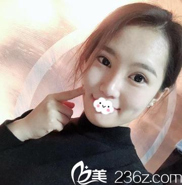 天津联合丽格注射玻尿酸隆鼻真人案例