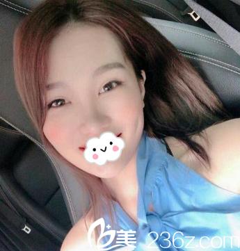 天津联合丽格医疗美容医院韩金柱术后照片1