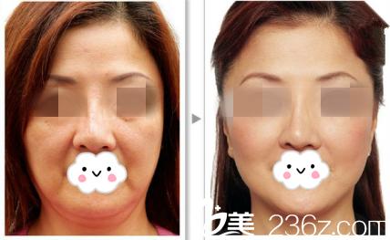 哈尔滨雅美线雕面部提升真人案例