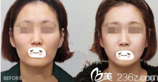 面部轮廓整形前后对比图