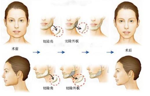 下颌角整形过程示意图