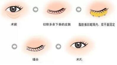 祛眼袋过程图