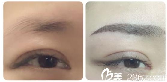 靖江百达丽双眼皮+纹眉案例