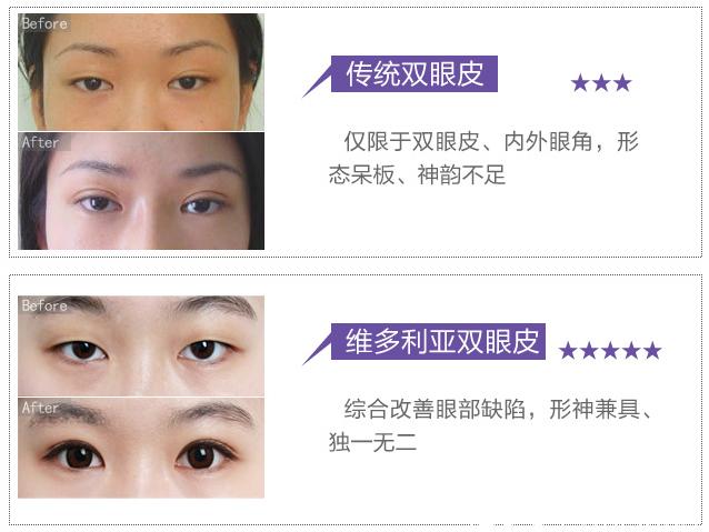 在南京维多利亚做双眼皮案例
