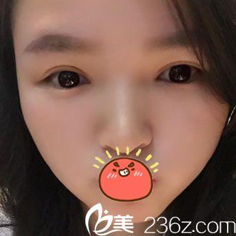 发表在宁波北仑卡丽医美朱园杰院长处做双眼皮和开眼角眼综合手术的真实感言