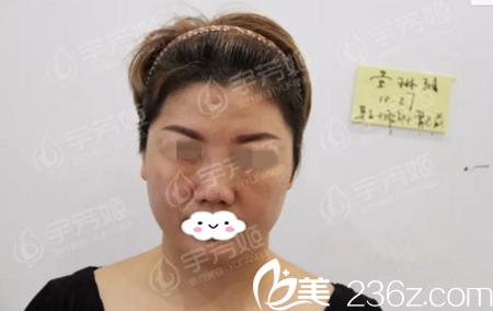 手术前的黄琳雅女士照片