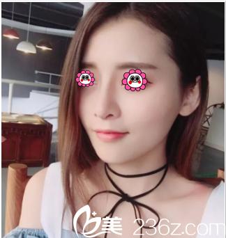 亲身体验北京薇琳董香君隆鼻技术才知道找她做鼻修复人不少原因