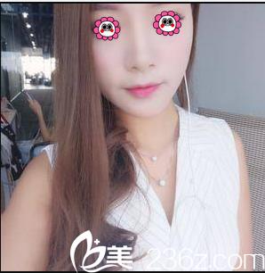 我在北京润美玉之光做肋软骨鼻综合隆鼻因闺蜜找张红芳做假体歪鼻修复效果好
