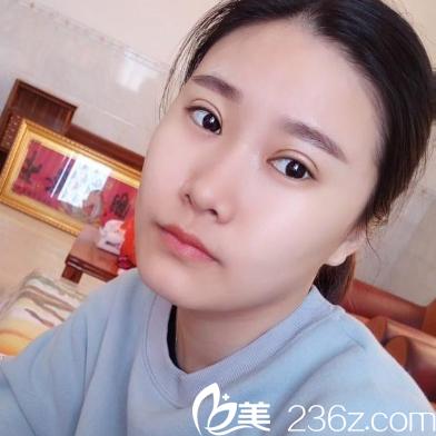 在深圳江南春天做完双眼皮半个月效果图