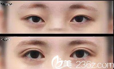 埋线双眼皮能维持多久?