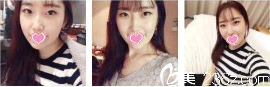 上海薇琳医疗美容医院丁晓东皮秒激光祛斑真人案例术后第七天