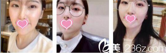 上海薇琳医疗美容医院丁晓东术后照片1