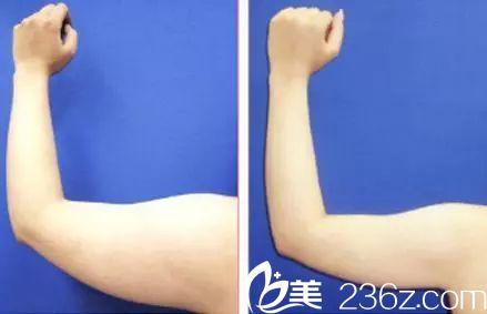 手臂吸脂真人案例对比图