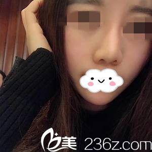 湘潭雅美医疗美容医院杨奇元术后照片1