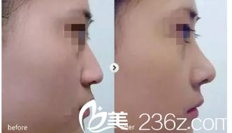 隆鼻术前术后对比